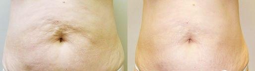 ขาเรียว ลดต้นขา ลดต้นแขน สลายไขมัน เซลลูไลท์ แบบง่ายๆจากประเทศอเมริกา
